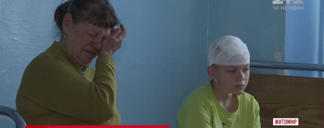 """В Житомире троллейбусная штанга """"отправила"""" школьника в больницу"""