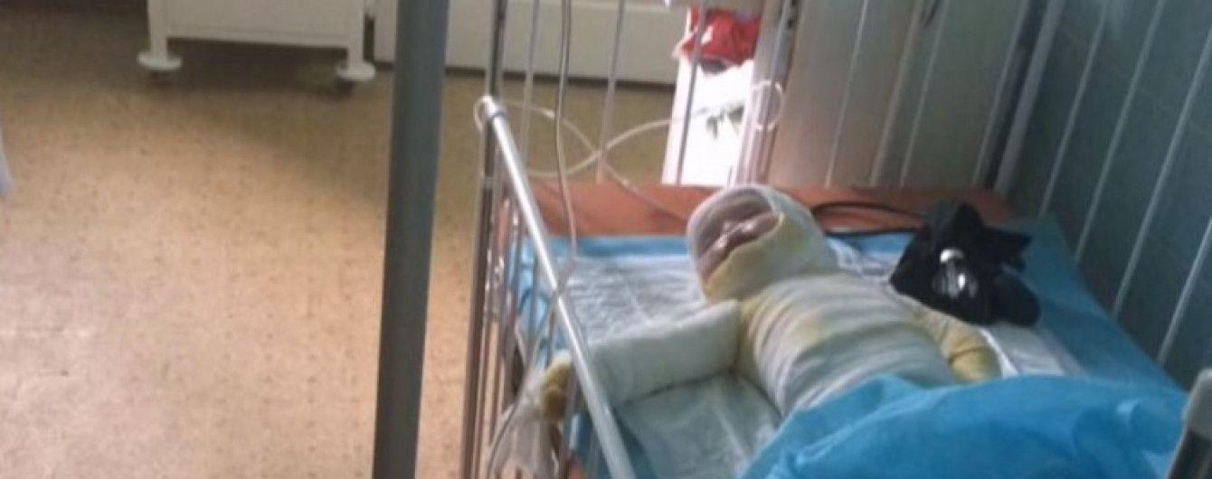 В Одессе умерла 2-летняя девочка, которую родители обварили кипятком и две недели сами лечили