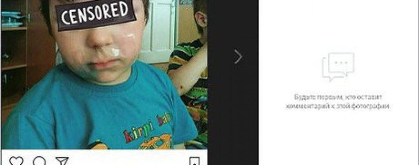 У РФ вихователька заклеїла дитині рот скотчем і виклала фото в Instagram