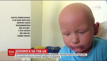 Постійний біль та тріщини по тілу: Вадим потребує допомоги в боротьбі з рідкісною хворобою