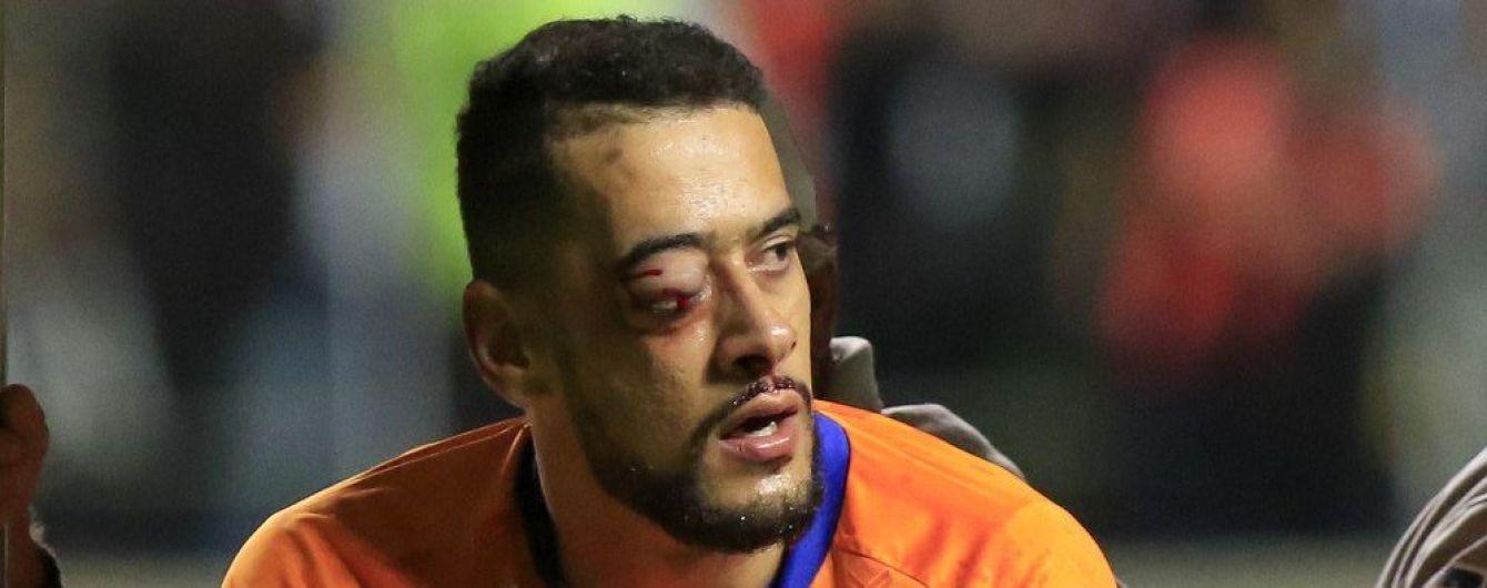 Бразильскому голкиперу вживили в лицо титановые пластины после столкновения с соперником