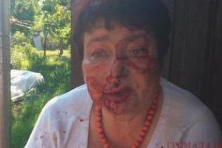 На Київщині на замовлення жорстоко побили голову ТВК Коцюбинського