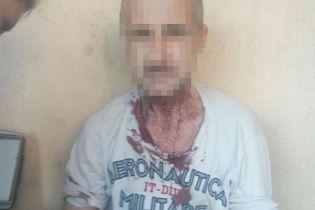 """В Киеве мужчина порезал вены и шею и пытался прыгнуть с моста после приказа """"голоса"""""""