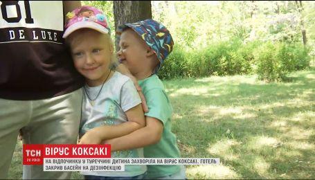В украинской семьи во время отдыха в Турции обнаружили вирус Коксаки