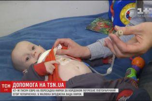 Батьки півторарічного Єгора з вадою нирок просять допомоги на операцію за кордоном