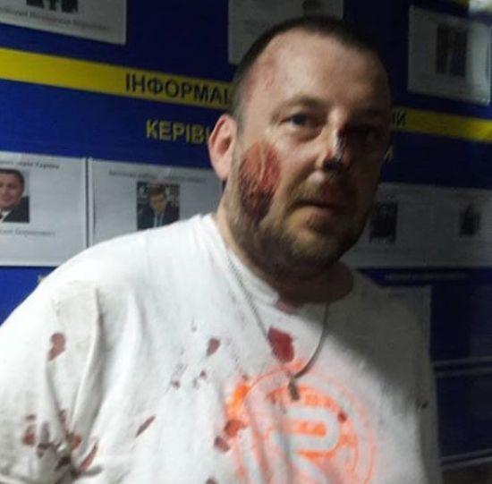 Активісти заявили про побиття поліцією добровольців АТО у Києві