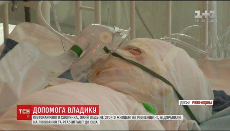 Хлопчика, який ледь не згорів живцем на Рівненщині, відправили на лікування до США