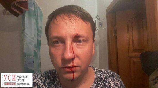 На Одещині побили депутата міськради у його день народження