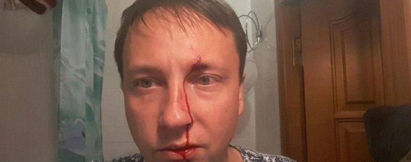 На Одесчине избили депутата горсовета в его день рождения