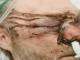 Обличчя як розтрощені пластівці. В Англії підліток відгамселив викладача, що той ледь не втратив зір