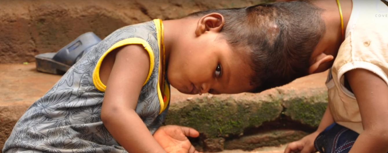 В Индии врачи разделят слитых головами близнецов