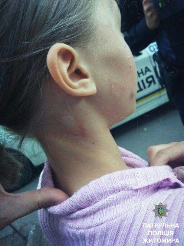 """""""Мене побила мати"""". У Житомирі вулицями ходила дівчинка, яку кривдили вдома"""