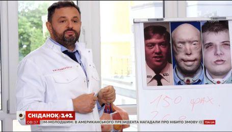 Как проводится полная пересадка лица