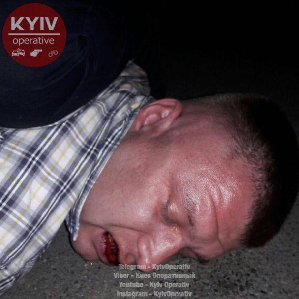 В Киеве пьяный мужчина стрелял из пистолета, другой пришел в больницу с простреленной задницей