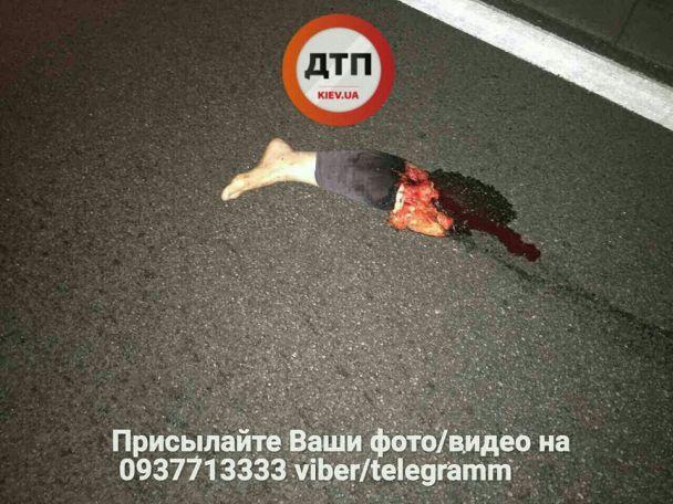 В элитной Конча-Заспе из-за смертельного ДТП женщине-пешеходу оторвало ногу