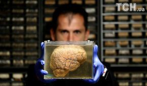 Reuters показало, як виглядають мізки психічно хворих людей