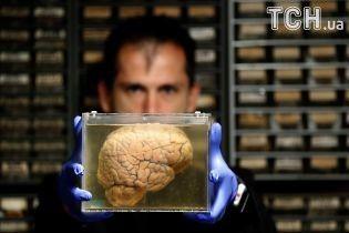 Reuters показало, как выглядят мозги психически больных людей