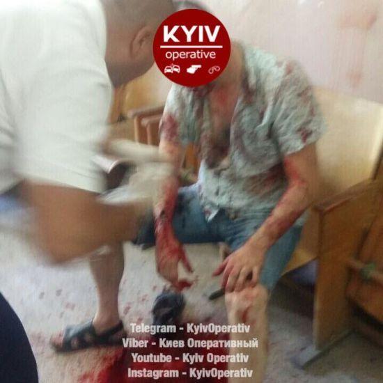 У Києві невідомі розстріляли чоловіка в ЖЕКу, відібравши 200 тисяч гривень