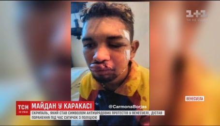 Символ венесуэльского Майдана жестоко ранен во время антиправительственных протестов