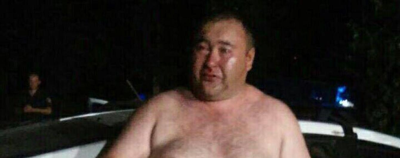 У Кривому Розі керівник із поліції напідпитку влаштував бійку біля кафе та матюкався