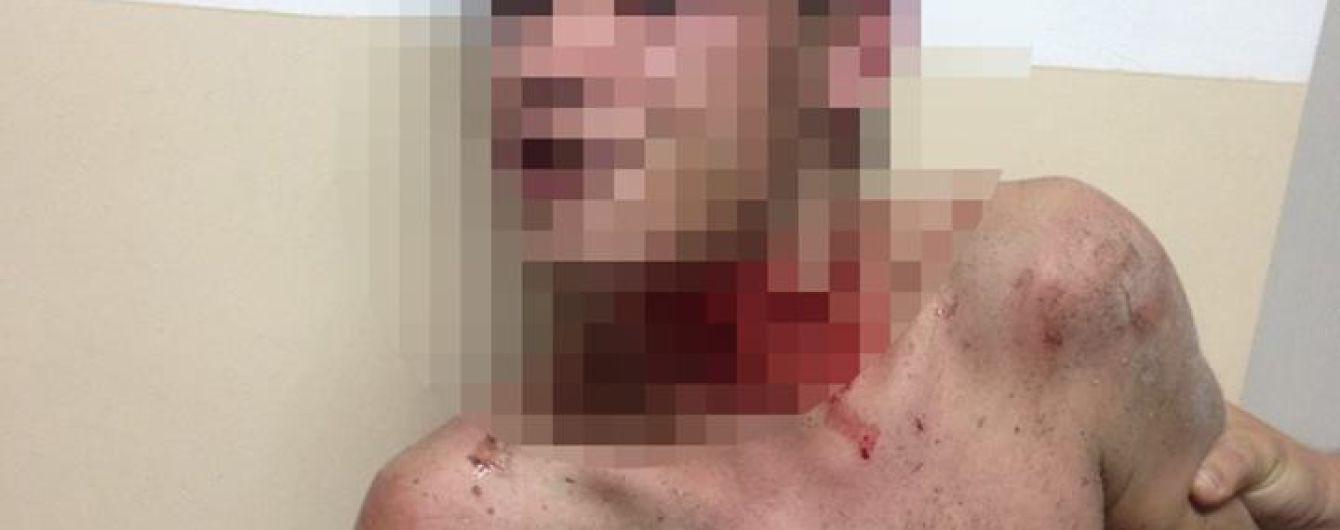 У Житомирі чоловік кидався у перехожих камінням і намагався перерізати собі горло