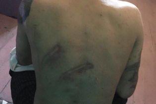 Прокуратура выявила жестокое обращение с содержащимися в скандальном Одесском СИЗО