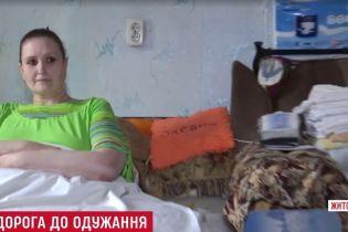 Унікальна 350-кілограмова українка потребує допомоги в лікуванні слоновості ніг