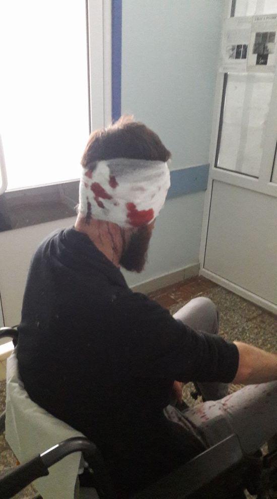 У Харкові жорстоко побили активіста-антикорупціонера