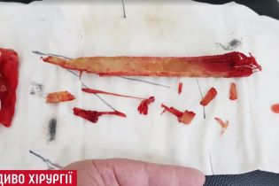 Чудо медицины: хирурги Института Шалимова достали из шеи пациента 25-сантиметровый кол