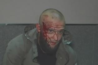 Бійку на ножах біля київського клубу влаштували боєць АТО і переселенці з Донеччини