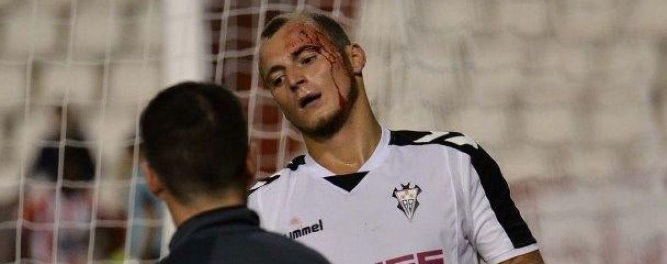 Зозуля розбив голову в дебютному матчі за нову команду