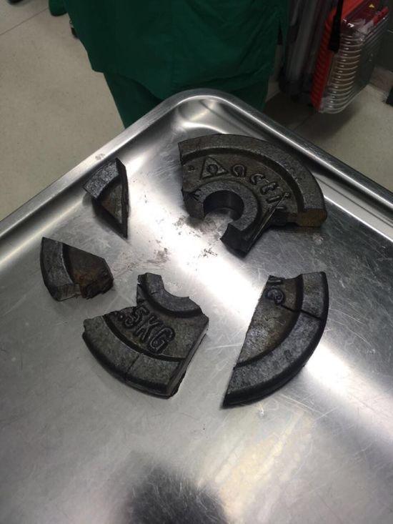 У Німеччині спеціалісти три години рятували пеніс з отвору диска для гантелі