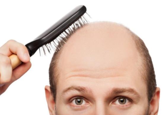 MINOX: Лікувальна косметика від випадіння та для росту волосся