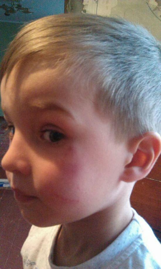 Синець на півобличчя та подряпина. На Київщині завідувач дитсадка кинула 5-річного хлопчика об підлогу