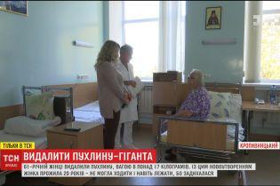 У Кропивницькому жінці видалили пухлину вагою понад 17 кілограм