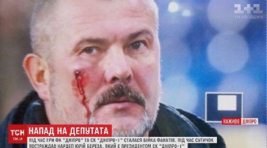 У Дніпрі під час футбольного матчу розбили обличчя нардепу Березі
