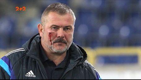 Президент СК Дніпро-1 постраждав під час фанатських сутичок