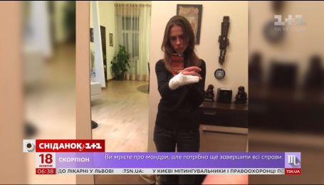 Столичные полицейские сломали руку женщине, отказавшейся предъявлять водительские документы