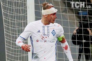 """Захисник """"Динамо"""" Віда до крові розбив голову у матчі Ліги Європи"""