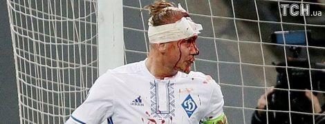 """Защитник """"Динамо"""" Вида в кровь разбил голову в матче Лиги Европы"""