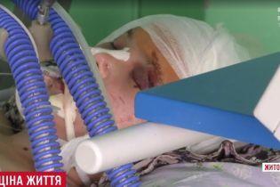 Сільські підлітки на Житомирщині забили майже до смерті 17-річну дівчину через 500 гривень