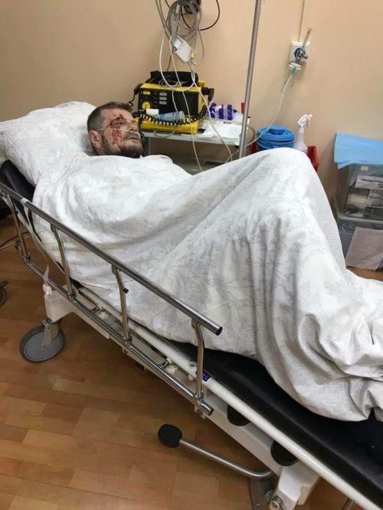 У Радикальній партії розповіли про стан Мосійчука після вибуху