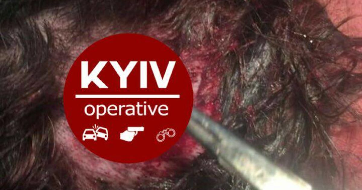 @ Facebook.com/KyivOperativ