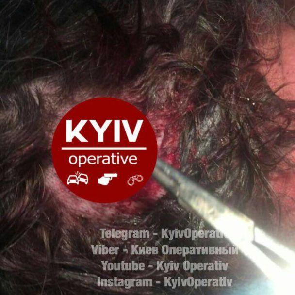 Прострелили голову і палець: уКиєві скоїли жорстокий напад натаксиста