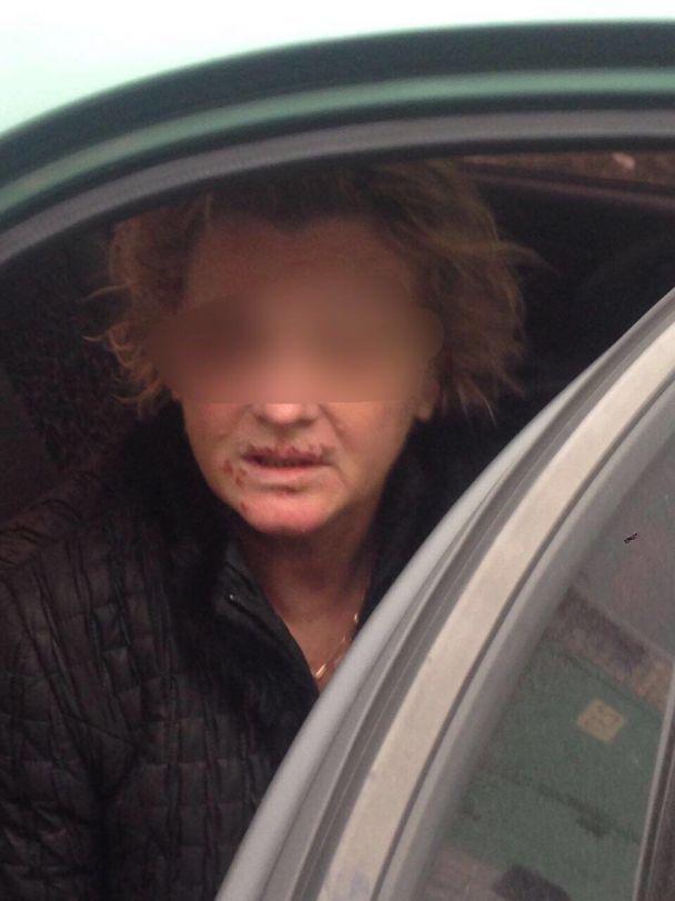Тиждень тримали у підвалі і знущалися: на Київщині поліція затримала викрадачів жінки-лікаря