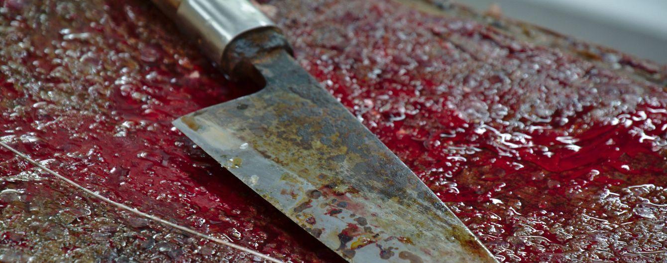 На Полтавщине агрессивные отдыхающие пырнули ножом копа за попытку прекратить их драку