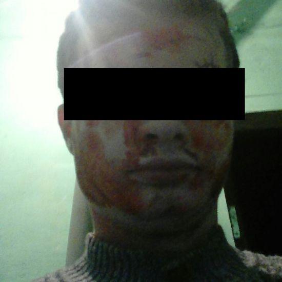 У Росії пред'явлено звинувачення поету-канібалу, який убив жінку, їв її мозок та запивав кров'ю