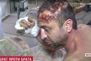 В Житомирской области подполковник милиции жестоко пытал брата за наследство
