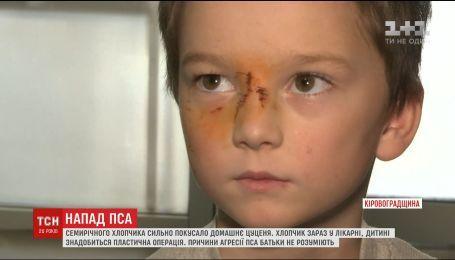 Домашний пес породы маламут укусил своего семилетнего хозяина за лицо