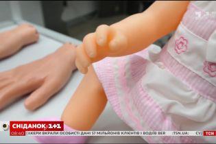 Зрощення пальців: про причини виникнення та методи лікування